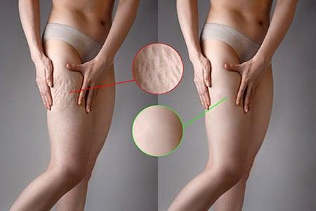 eliminer la cellulite
