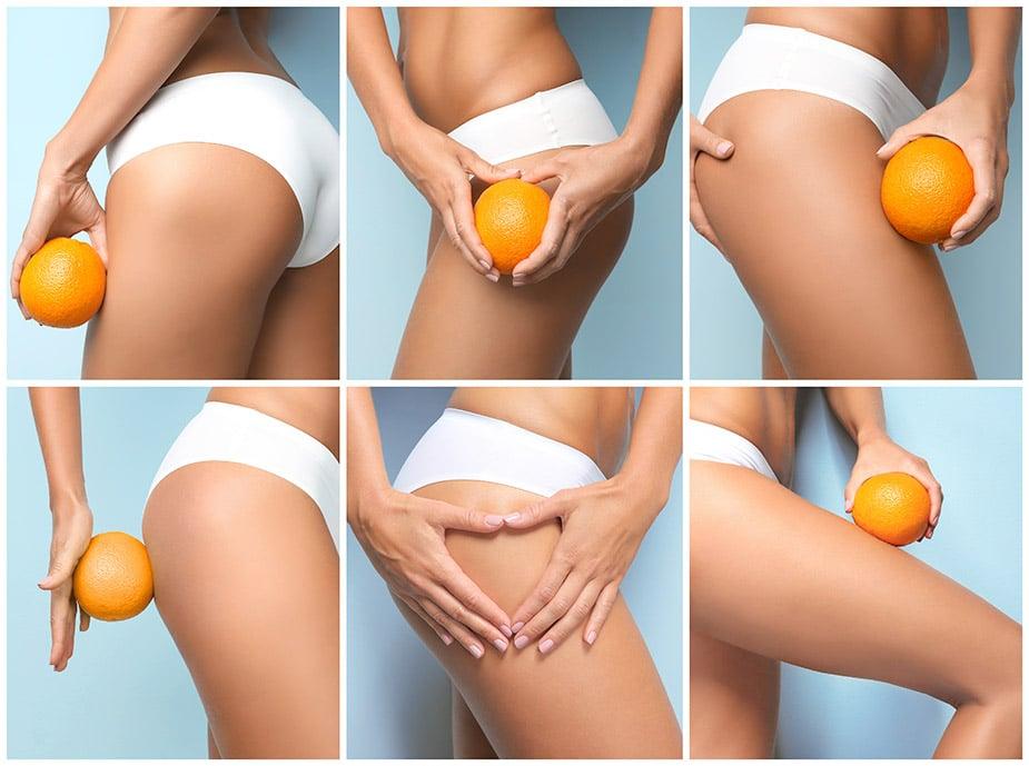 cellulite peau d'orange